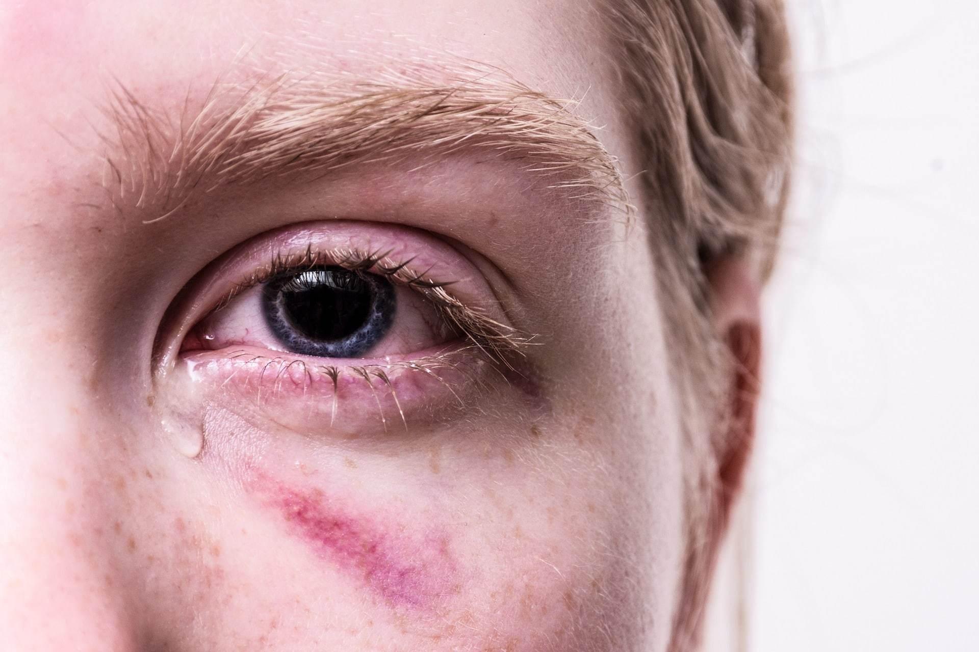 revictimisation femme battue